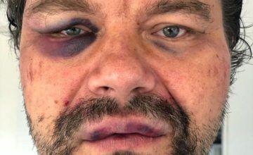 Denuncian que periodista polaco fue golpeado por funcionarios del FAES