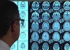 Un fármaco para prevenir el ictus evita la pérdida de memoria en el alzhéimer
