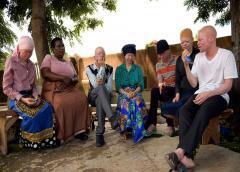 Supersticiones que pueden costar la vida a albinos en África